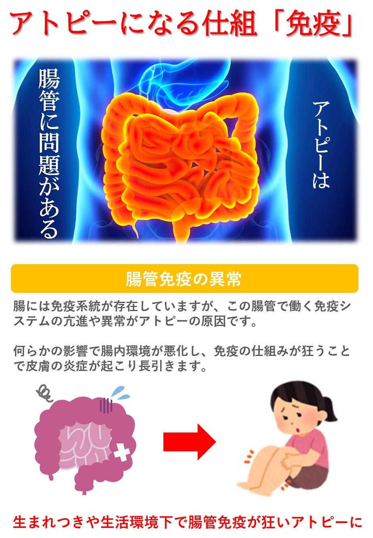 アトピーの原因:腸内環境悪化による免疫バランスの悪化